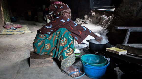 A woman with LF cleans her affected limb.